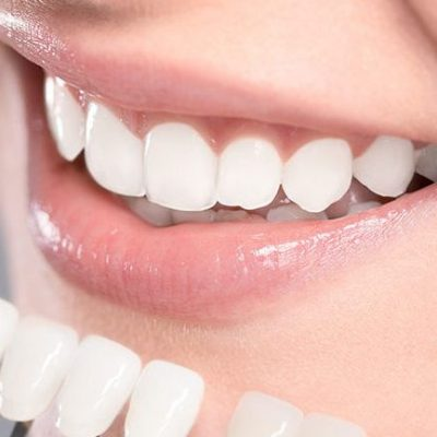 new-composite-fillings-945x590